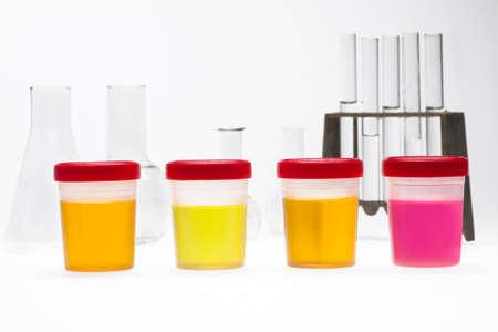 violate: doping test of urine on laboratory Stock Photo