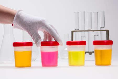 doping test of urine on laboratory Stok Fotoğraf
