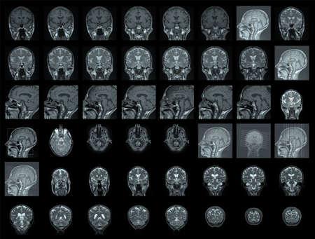 resonancia magnetica: RMN de cerebro humano