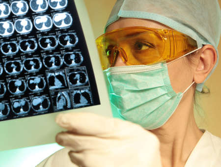 urology: Woman doctor holding an x-ray in the hospital  Stock Photo