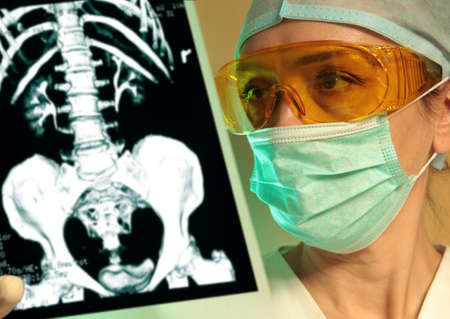 Woman doctor holding an x-ray in the hospital  photo