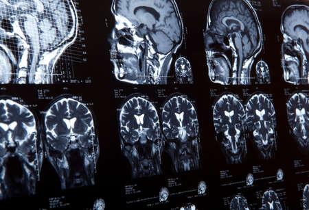 MRI of human brain. tomography background