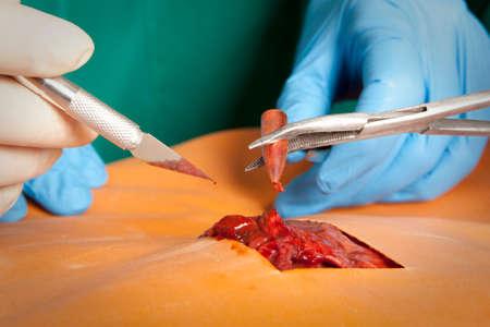 salvavidas: Un cirujano tiene una bala sangrienta. Concepto de salvar la vida