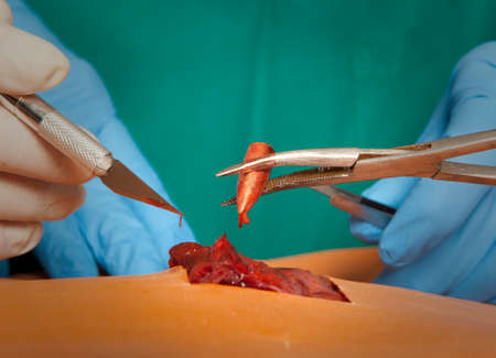 lifesaving: A surgeon holds a bloody bullet. Concept of life-saving