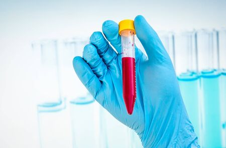 hemorrhagic: Scientists hand holding a test-tube with blood sample for BLOOD test