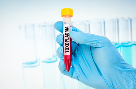 hemorrhagic: Scientists hand holding a test-tube with blood sample for TOXOPLASMA test