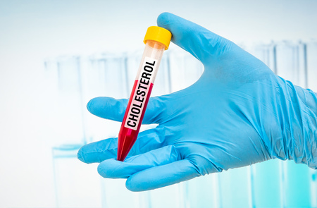 lipid: Scientists hand holding a test-tube with blood sample for CHOLESTEROL test Stock Photo
