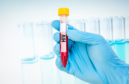 Scientists hand holding a test-tube with blood sample for HIV or AIDS test