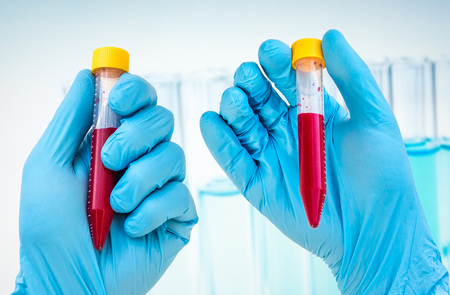 Scientists hand holding a test-tube with blood sample for BLOOD test