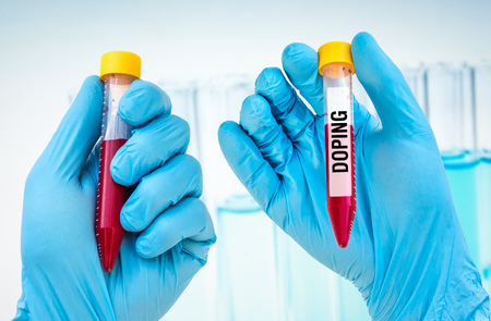 Scientists hand holding a test-tube with blood sample for DOPING test