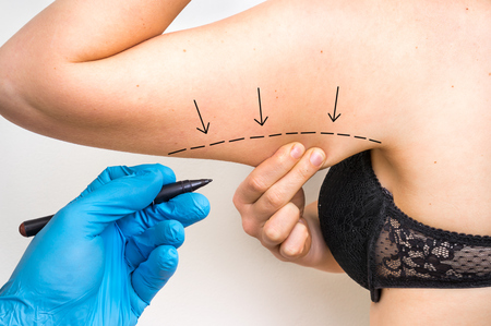 pinching: Plastic surgery doctor draw line on patient arm - cosmetic surgery concept