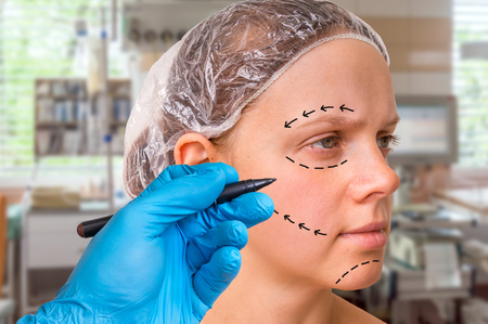 Doctor draw lines with marker on patient face for facial plastic surgery at clinic
