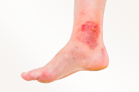 Red rash on leg of patient who was bitten by an insect (close-up)