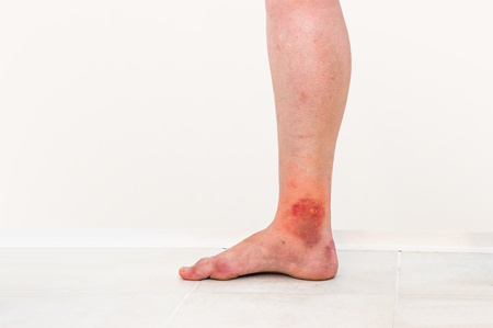 seeping: Red rash on leg of patient who was bitten by an insect (close-up)