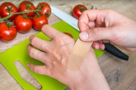 Joven mujer aplicar yeso en la mano - lesión en la cocina
