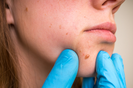 Woman with birthmark on her face, skin tags removal - cosmetic surgery