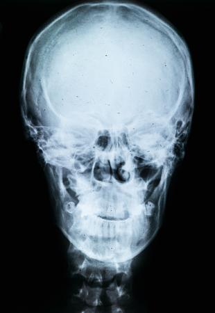 X-ray of human skull. X-ray image concept.
