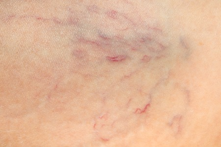 Close-up view of spider veins on female leg - varicose veins concept