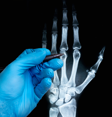 X-ray of human hand with doctors hand in glove. X-ray image concept. Stock Photo