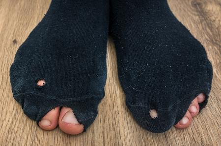 Calzini indossati con buchi e dita che sporgono da essi - concetto di crisi economica