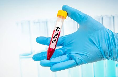 Hand of scientist is holding a test-tube with positive blood test on CORONAVIRUS COVID-19