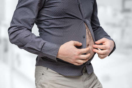 Fat belly of man which does not fit under the shirt - obesity concept