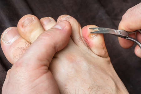 Man cutting nails on his foot - pedicure concept Stok Fotoğraf
