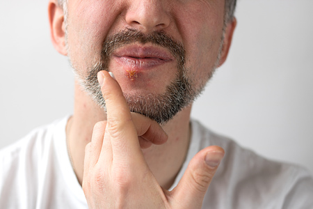 Lower part of beard man's face with herpes on his lips and hand putting cream on it. Horizontal shot with sides 3 x 4. Face wrincles in unpeasantness. Face is on the left side and right is for copy space. White background. Stock Photo