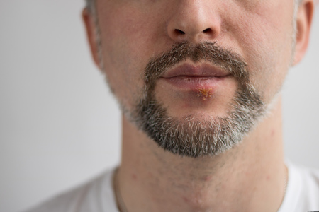Lower part of beard mans face with herpes on his lips. Horizontal shot with sides 3 x 4. Face is on the righr side and left is for copy space. White background. White T-shirt Stock Photo