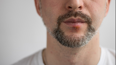 Lower part of beard mans face with herpes on his lips. Horizontal shot with sides 16 x 9. Face is on the right side and left is for copy space. White background. T-shirt