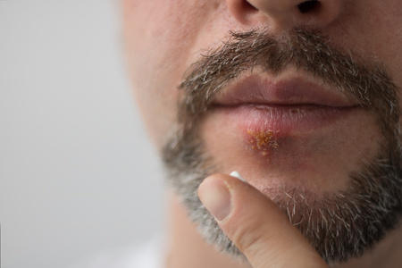 Lower part of beard mans face and hand with cream on finger putting it on spot of herpes on his lips. Horizontal shot with sides 3 x 4. Face is on the left side and right is for copy space. White background.