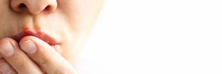 Part of a young woman face with red bubbles of virus herpes on lips that she tries to hide with her fingers. Medicine, treatment. Long horizontal banner with copy space Selective focus Close up