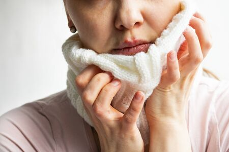Lower part part of woman face with Red bubbles of virus herpes on her lips, that she tries to hide under white knitted neckwarmer, Zoster, Cold, Medicine, Treatment. Horizontal, winter disease