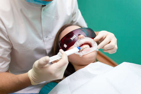 Dentist applies a tooth whitening gel with a syringe. Girl undergoes a teeth whitening procedure in a dental clinic
