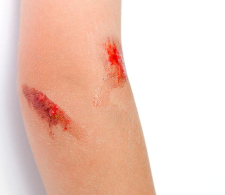 scab: Young Child With Bloody Scrape on Arm