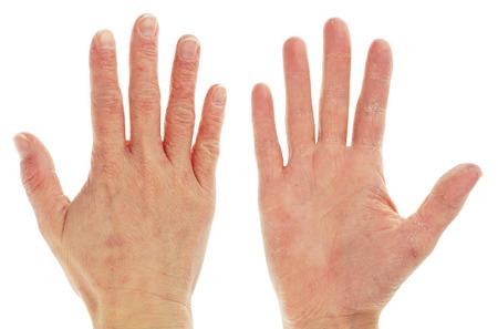 湿疹皮膚炎 onFront とバックの手と指