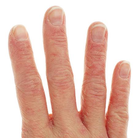 Primo piano di Eczema Dermatite sul dorso delle dita