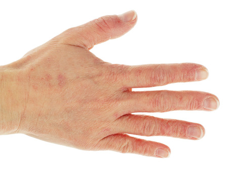 rash: Eczema Dermatitis on Back of Hand and Fingers  Stock Photo