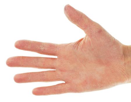 Eczema Dermatite sul palmo della mano e delle dita