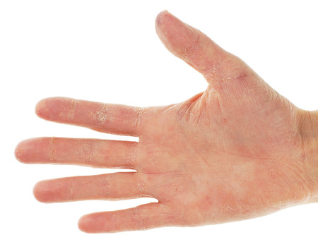 Eczema Dermatitis on Palm of Hand and Fingers  Stock Photo
