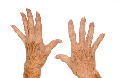 Female senior citizen hand with Rheumatoid Arthritis and age spots  also known as liver spots, Solar lentigo, Lentigo senilis and Senile freckle  shot on a white background Stock Photo