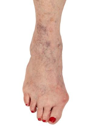 artrosis: Mujer de la tercera edad pierna derecha muestra tres condiciones médicas Foto de archivo