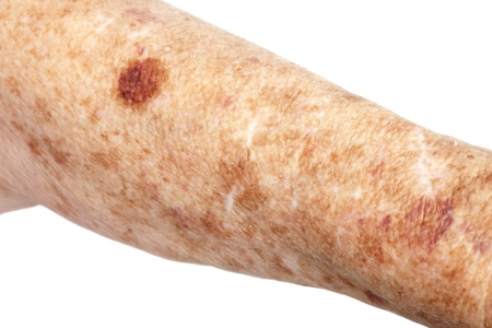 degeneration: Female senior citizen arm with age spots  also known as liver spots, Solar lentigo, Lentigo senilis and Senile freckle  shot on a white background  The large dark bruise  contusion or hematoma of tissueis  caused buy blood thinning medication  Stock Photo