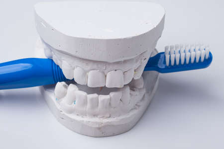 prothetic: Oral hygiene health concept. Closeup blue toothbrush in dental gypsum model plaster Stock Photo