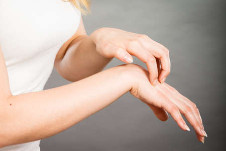 itchy: Dermatology, allergy and health problem. Young female scratching her itchy palm with allergy rash