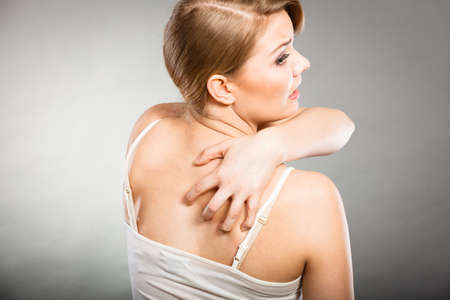 her: Health problem, skin diseases. Young woman scratching her itchy back with allergy rash