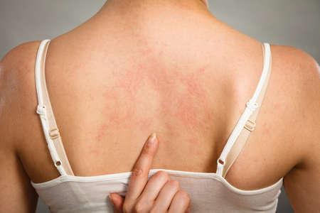 pokrzywka: problem zdrowotny, choroby skóry. Młoda kobieta pokazano jej swędząca wysypka z powrotem alergii objawy pokrzywki