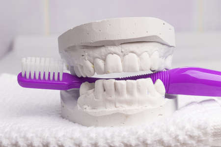 prothetic: Oral hygiene health concept. Closeup violet toothbrush in dental gypsum model plaster