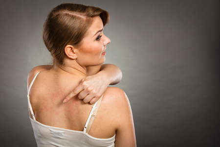 itchy: Health problem, skin diseases. Young woman showing her itchy back with allergy rash urticaria symptoms