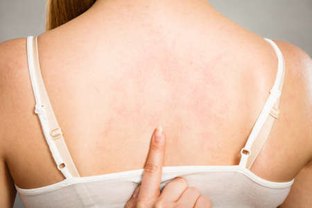 pokrzywka: Health problem, skin diseases. Young woman showing her itchy back with allergy rash urticaria symptoms